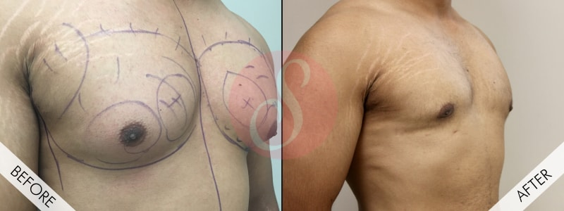 Male Chest Reduction Surgery in Gurgaon, Delhi NCR, India
