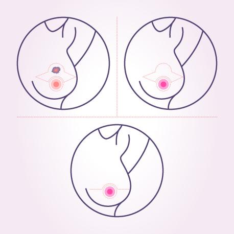Breast Onco Surgery Surgeon in Delhi